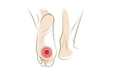 Pijn onder bal voet