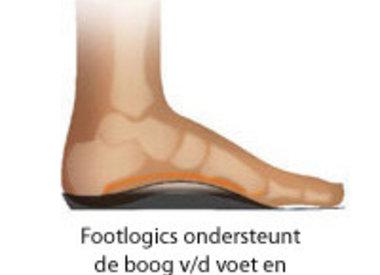 Steunzolen doorgezakte voeten