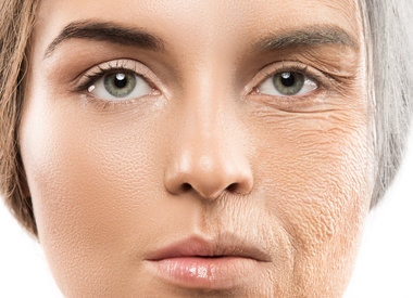 Rimpels en huidverslapping