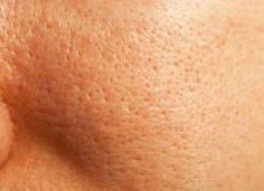 Grobe Poren