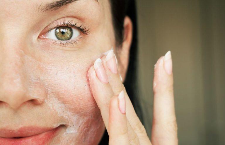 Skincare routine tegen puistjes en mee-eters