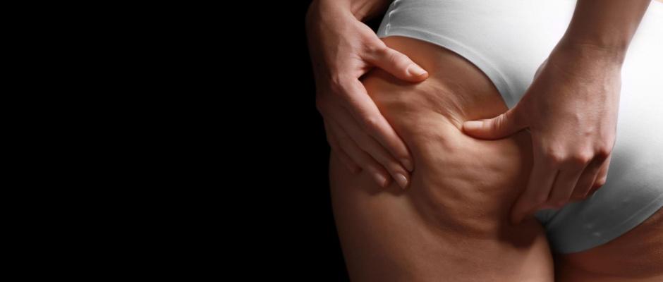 Cellulite und ihre Bekämpfung