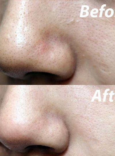 Cocoshine Cocoshine - Makeup & Mask Remover Pad