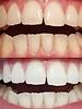 Cocoshine Teeth Whitening Powder Combo