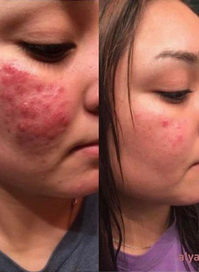 Alya Skin  Alya Skin Supercharged Skincare Bundle