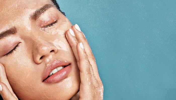 Tips en tricks voor het verzorgen van de vette huid