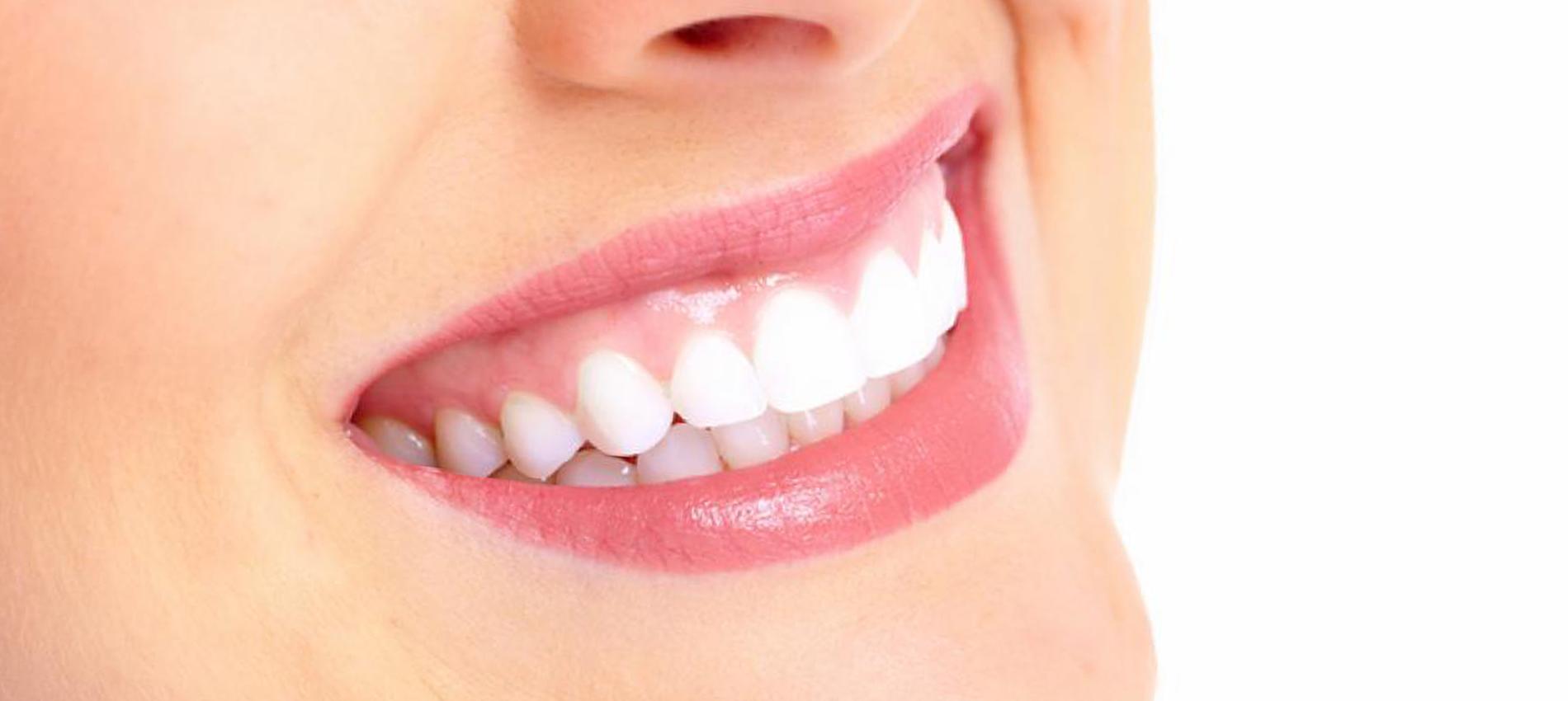 Hoe krijg ik witte tanden?