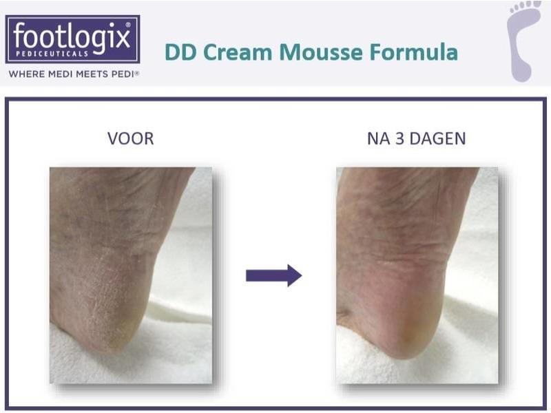 Footlogix DD Cream Mousse voor Hydratatie