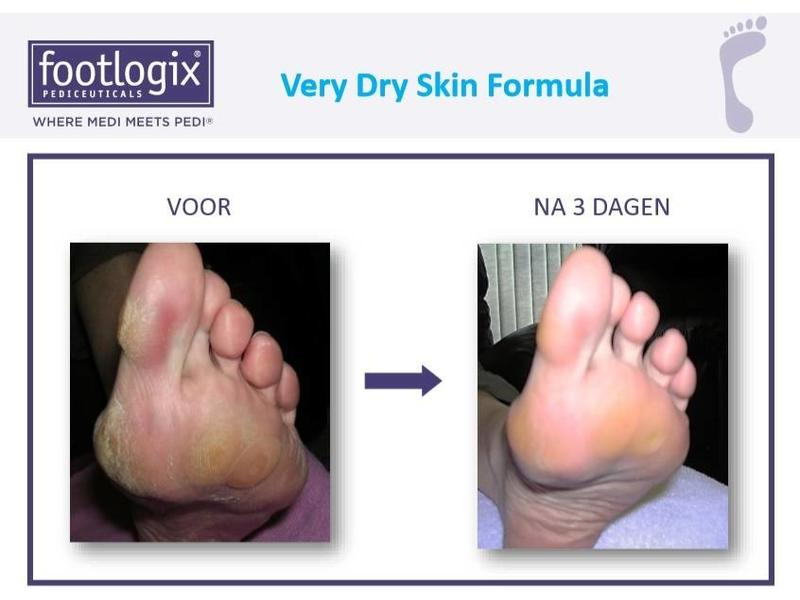 Footlogix Very Dry Skin Formula tegen Droge Huid