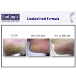 Footlogix Cracked Heel Formula tegen Ernstige Kloven