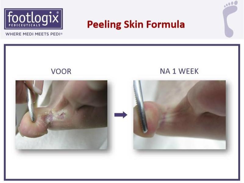 Footlogix Peeling Skin Formula tegen Loskomend Huid