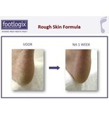 Footlogix Rough Skin Formula tegen Droge, Ruwe Huid