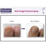 Footlogix Toe Nail Tincture Anti-Schimmel Tinctuur Spray