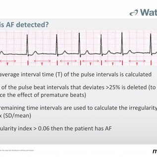 Microlife WatchBP O3 AFIB