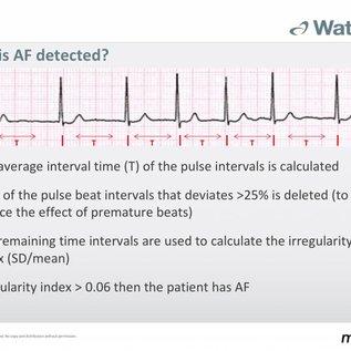 Microlife WatchBP Office enkel-armindex bloeddrukmonitor